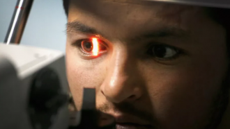 Google ogen hartziekte hartproblemen