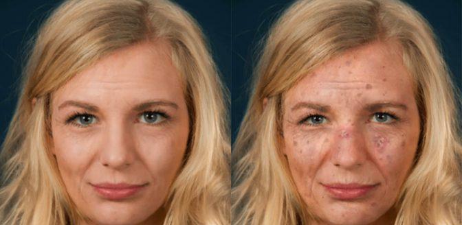 Sunface app gevaren zon