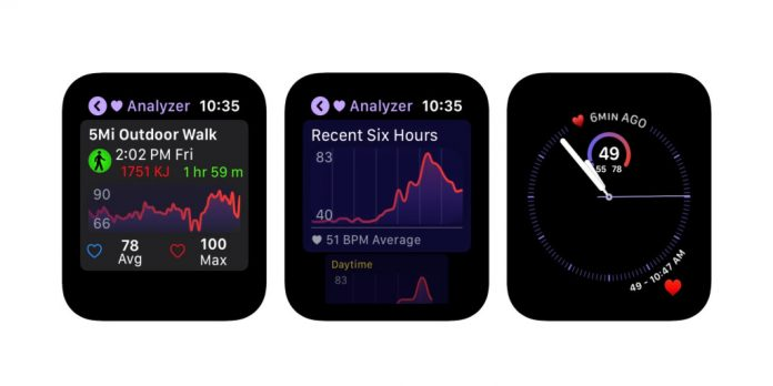 Apple Watch Heart Analyzer